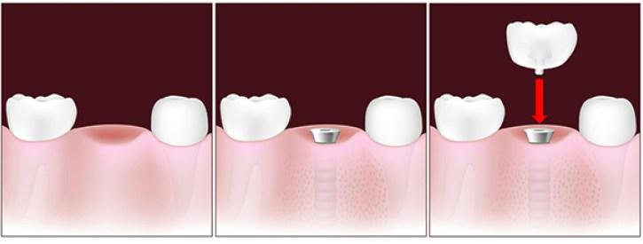 Qué es un Implante Dental.