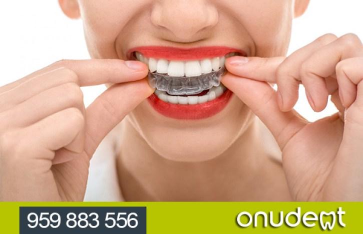 Ortodoncia para adultos.