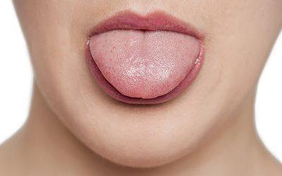 ¿Por qué es importante tratar la boca seca?