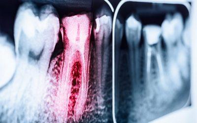 ¿Cuándo es necesario hacer una endodoncia?