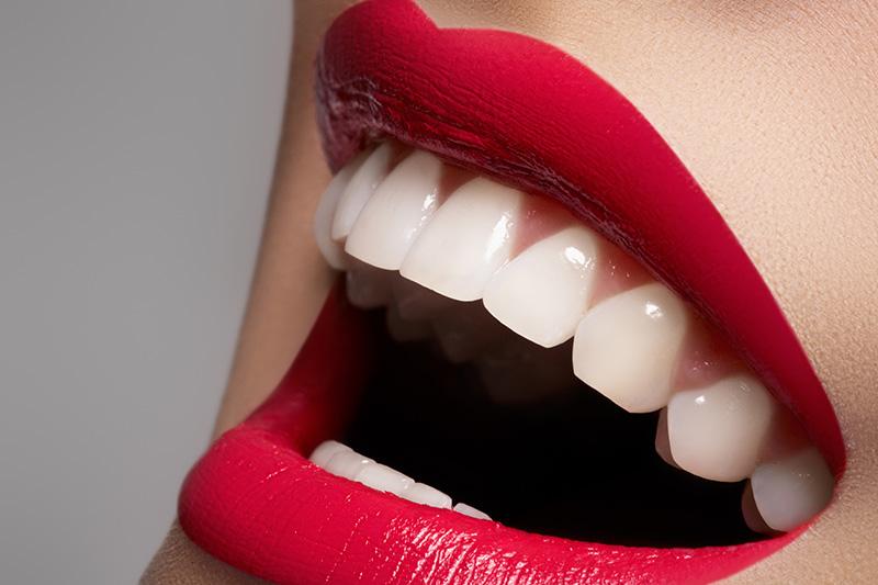 ¿Quieres mejorar tu sonrisa? Te contamos cómo