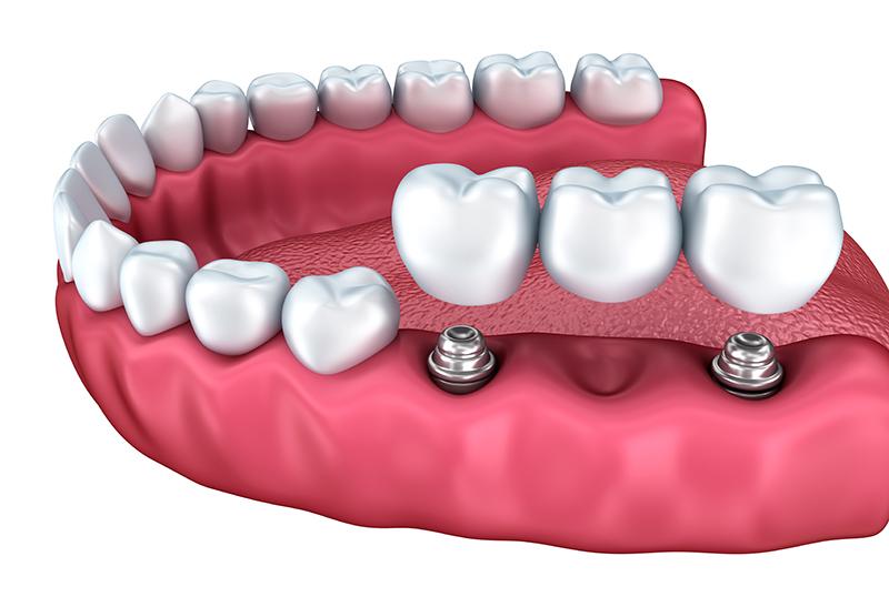 Cómo cuidar tus implantes dentales.